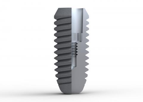 Abbildung: Schnittbild Implantatsystem